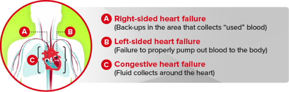 left sided heart failure Heart failure is a condition in which the heart can't pump enough blood to meet the body's needs heart failure does not mean that your heart has stopped or is about to stop working it means that your heart is not able to pump blood the way it should.